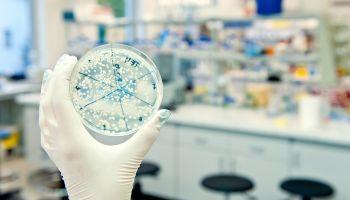 Formación homologada Curso Superior en Análisis de Muestras en el Laboratorio de Microbiología (Reconocimiento de Oficialidad por la Administración Pública – ESSSCAN)