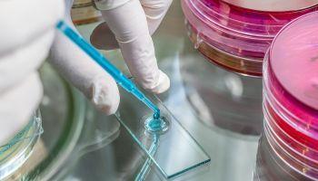 Master en Bioquímica + Titulación de Estudios de Bioquímica en el Laboratorio Clínico (Doble Titulación con Reconocimiento de Oficialidad por la Administración Pública – ESSSCAN)
